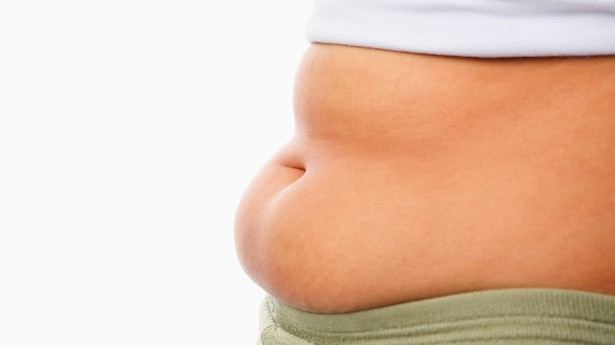 Woman with protruding belly fat